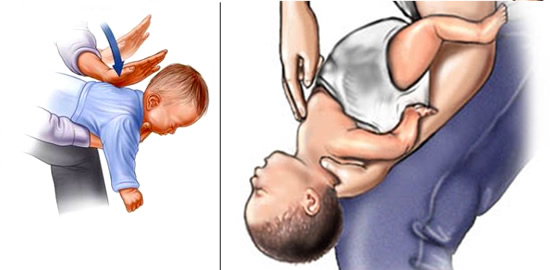 primeros auxilios atragantamiento de niños menores de un año