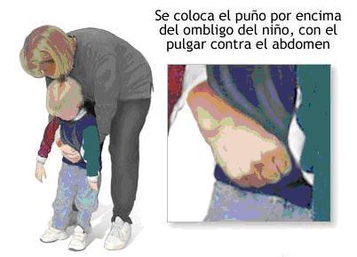 primeros auxilios atragantamiento niño mayor de un año